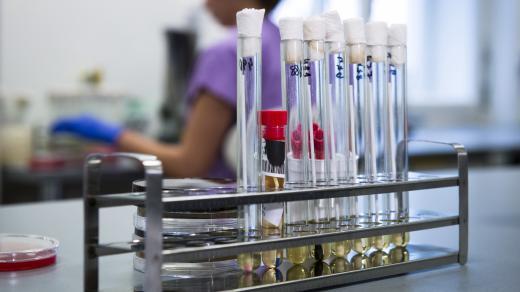 Vzorky v pražské Nemocnici Na Bulovce, kde se podezření na nákazu koronavirem nepotvrdilo